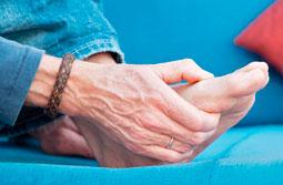 viden om gigt diagnoser urinsyregigt og podagra symptomer ved urinsyregigt